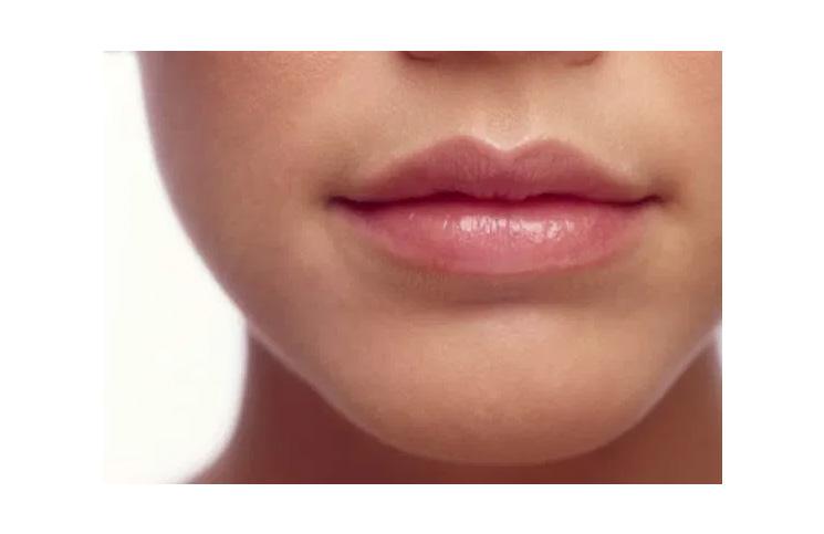 Hijaluron u službi uvećanja usana